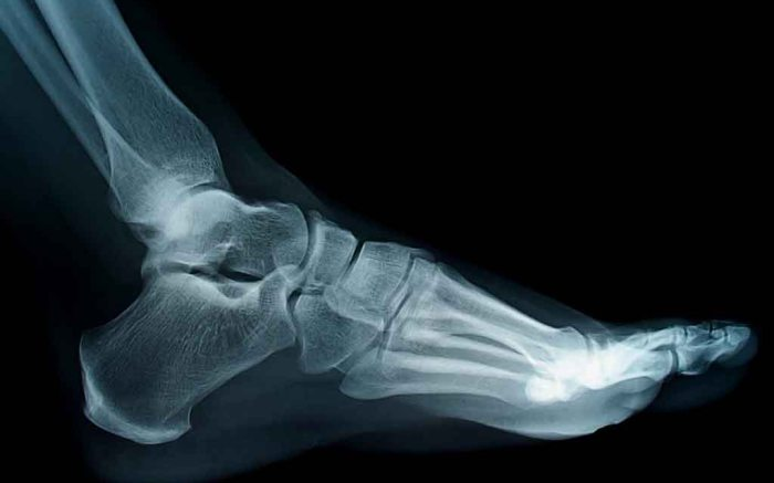 foot feet x-ray