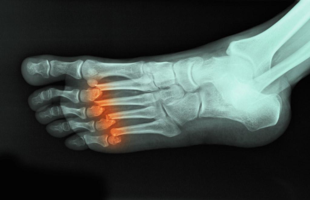 x-ray, foot