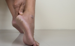how-to-cure-cracked-heels