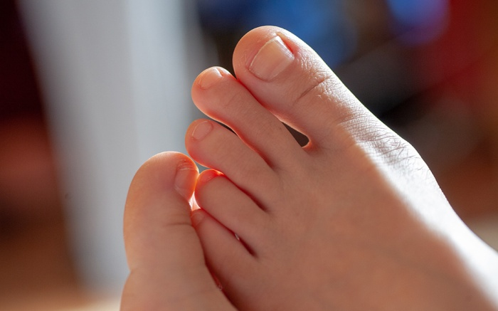 ingrown toenail treatments